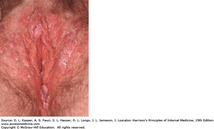 genital warts - Traducere în română - exemple în engleză   Reverso Context