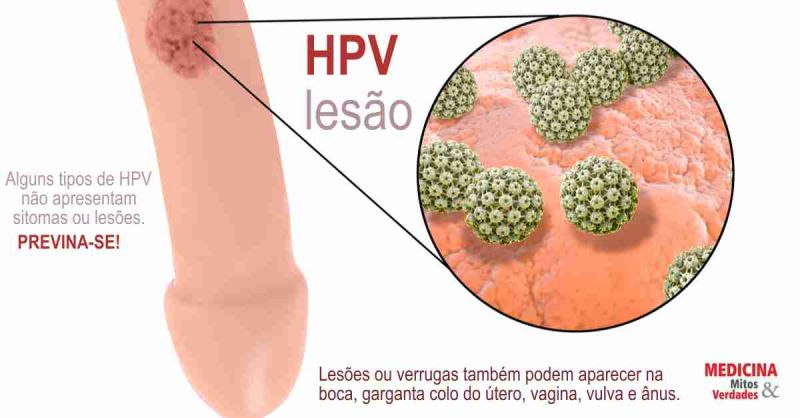 hpv genital transmissao helmintox used to treat