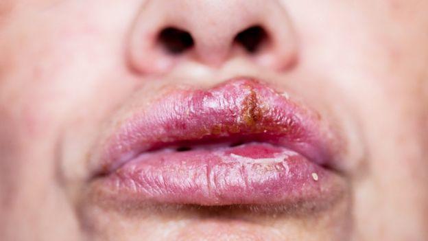 Pericolul Herpes: Bucal vs. Genital