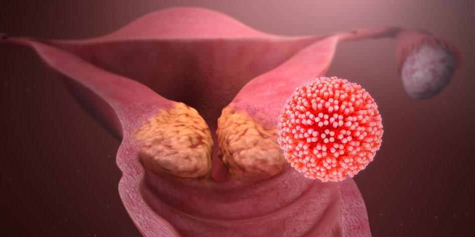 hpv impfung wenn schon infiziert cervical cancer under 30