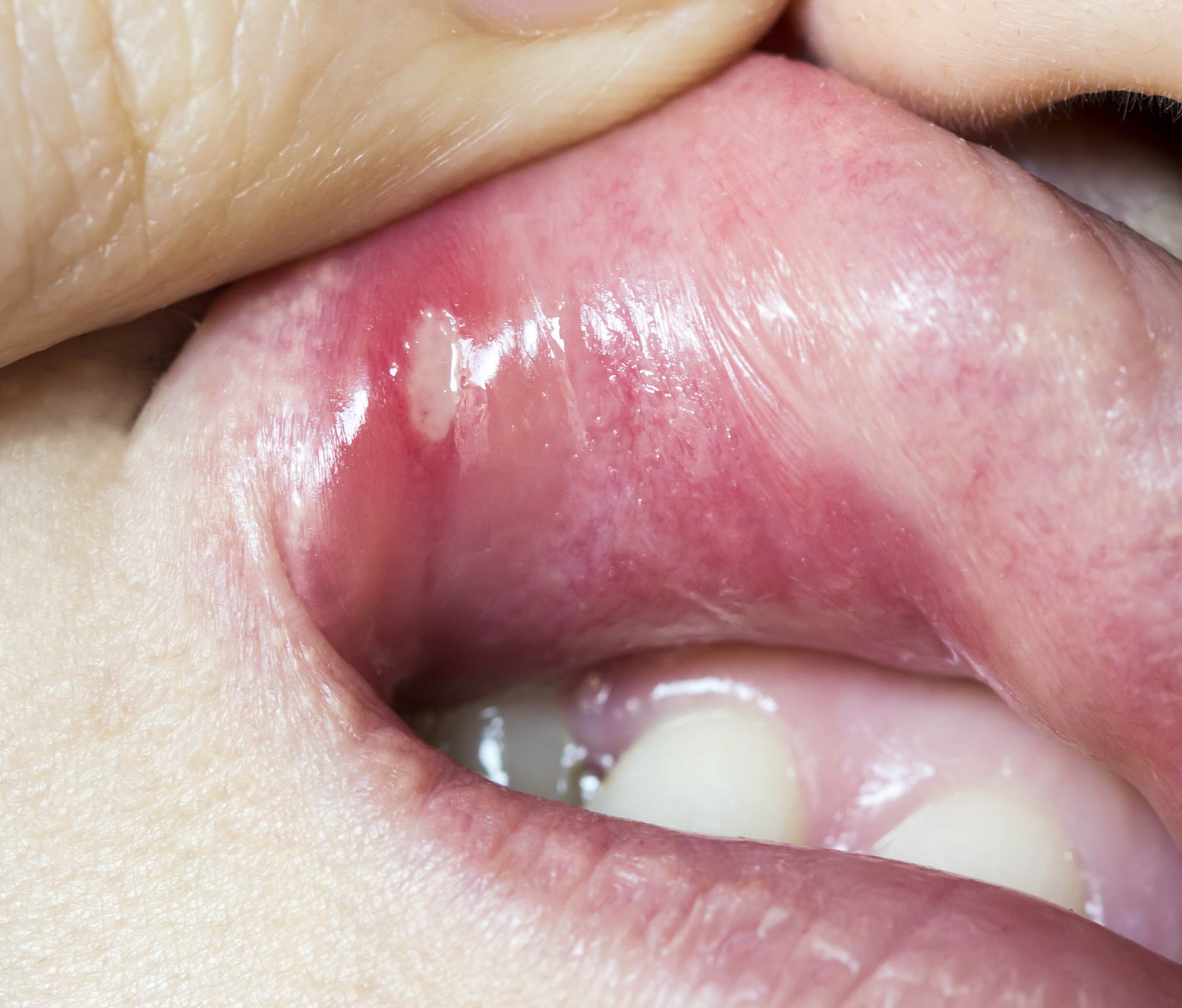 hpv in throat symptoms)
