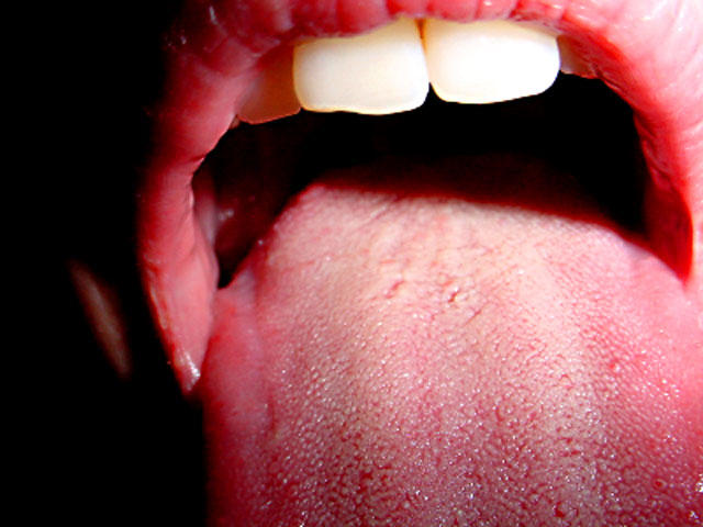 hpv mouth sores pictures