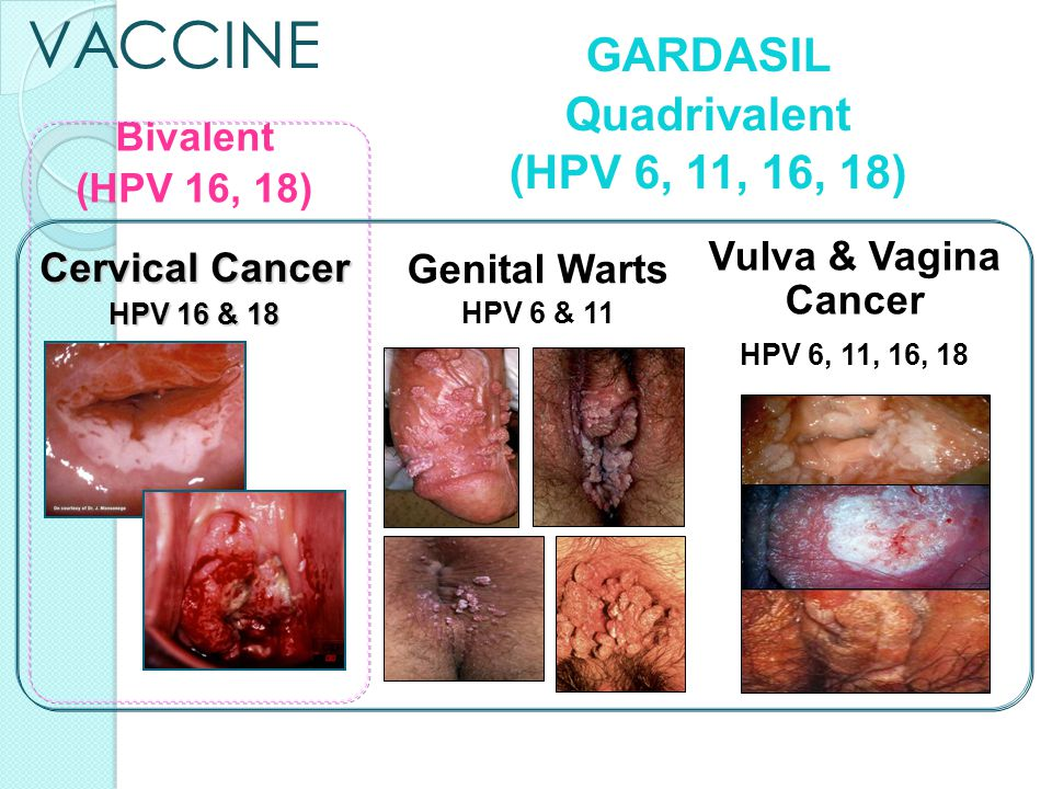 hpv no cancer or warts