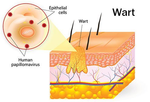 hpv non warts)