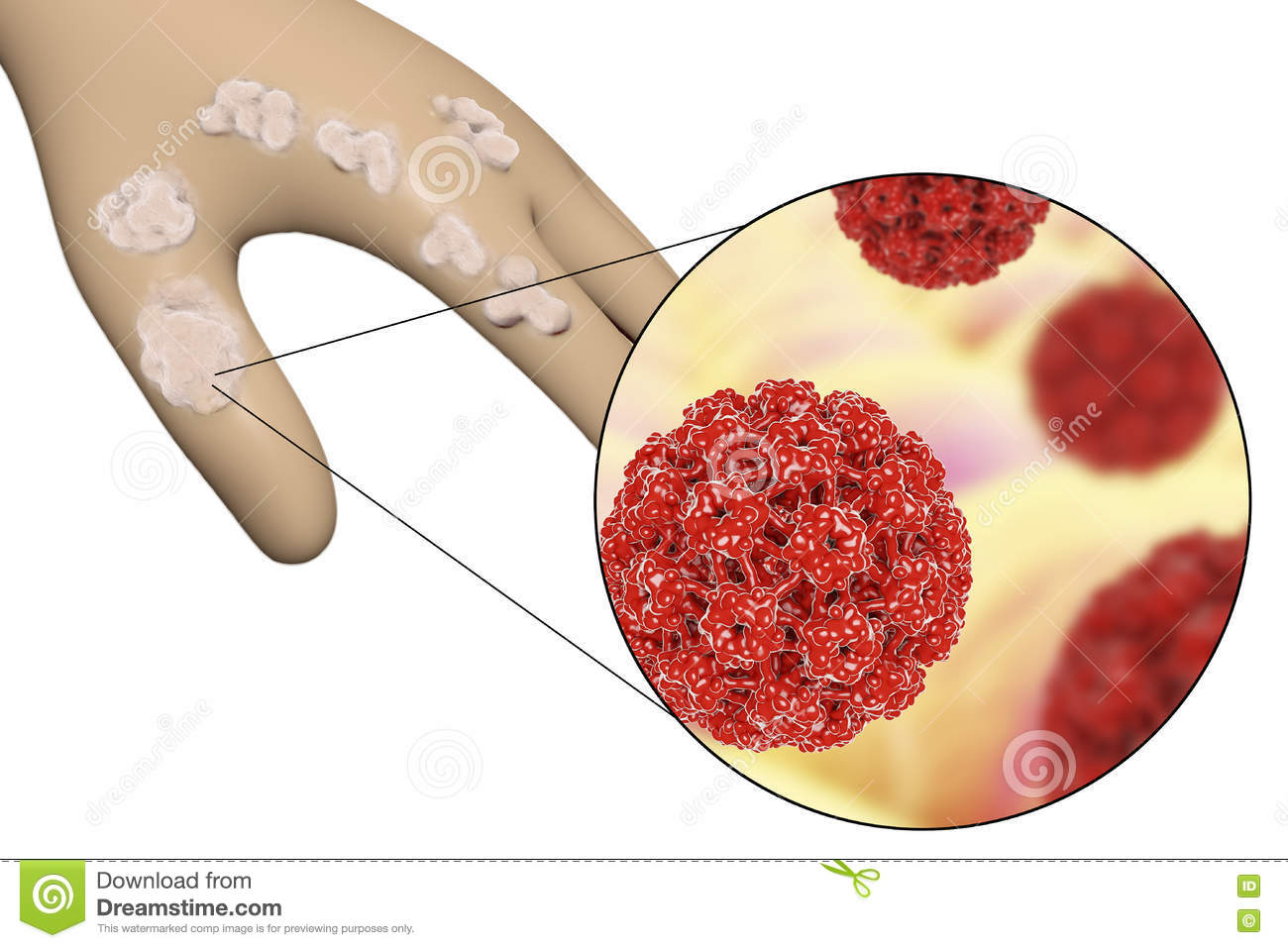 hpv papillomavirus cose hpv warts lips pictures