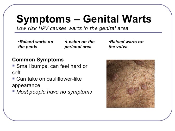 hpv positive genital warts