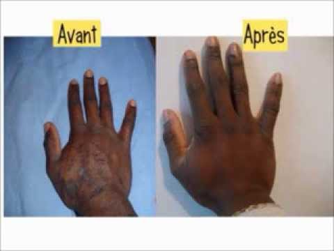hpv remede naturel virus papiloma humano sintomas y tratamiento