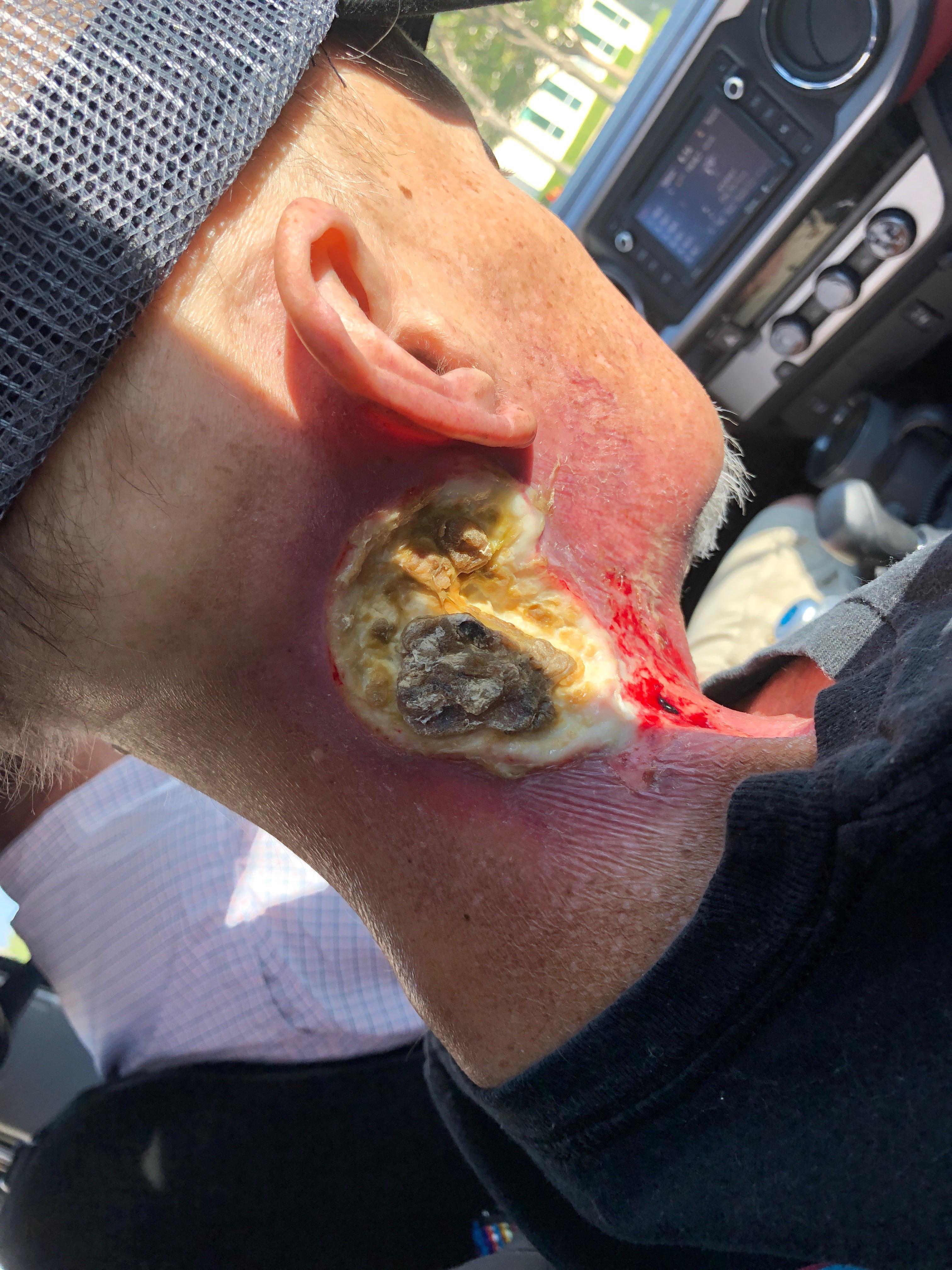 yeast infection and vestibular papillomatosis