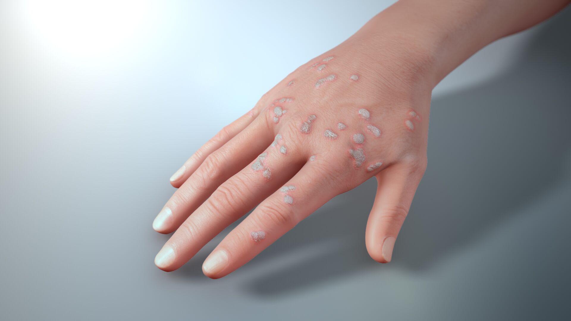 Human Papilloma Virus – Verucilor genitale – Verucilor genitale