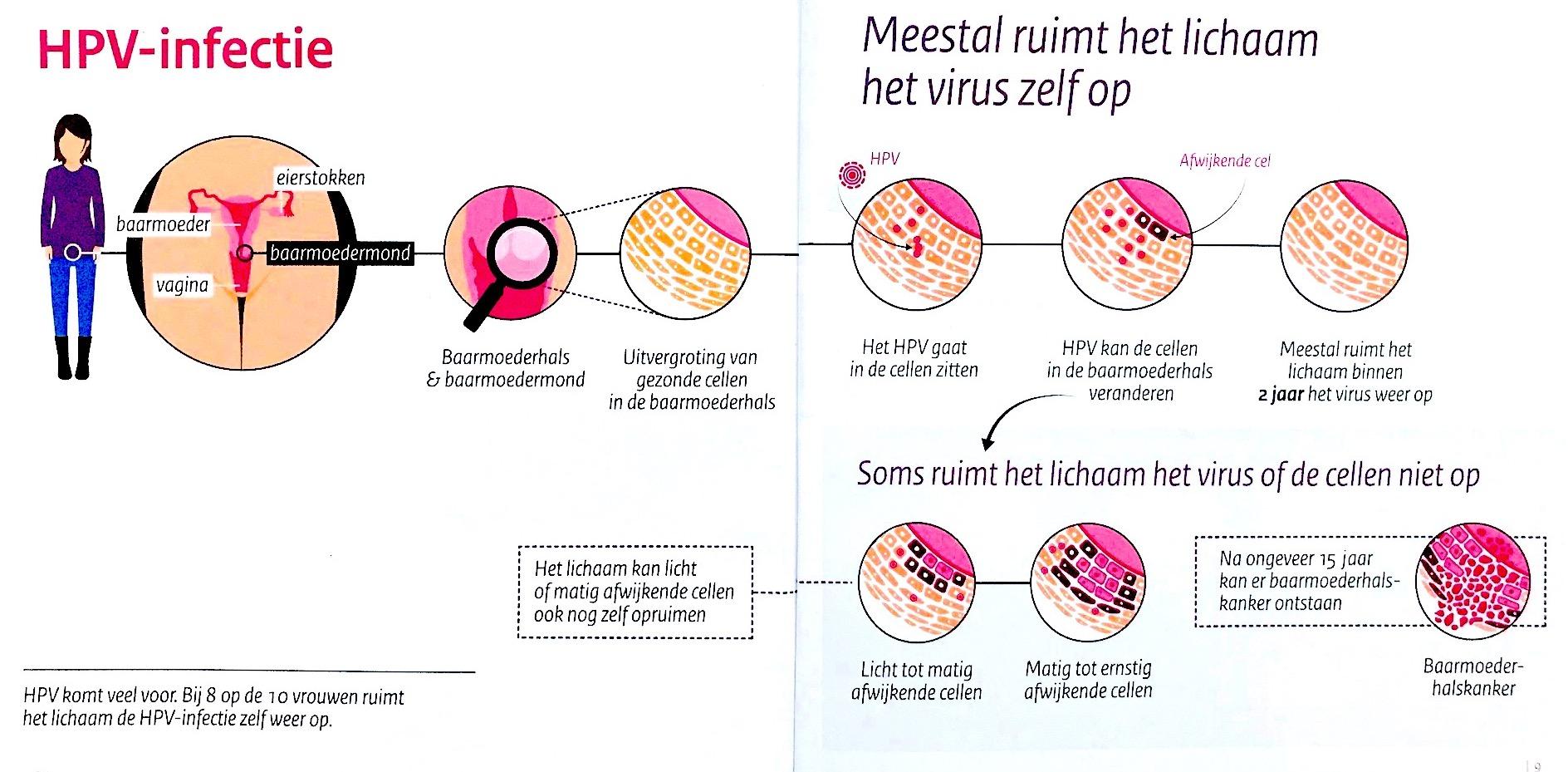 hpv virus besmettelijk