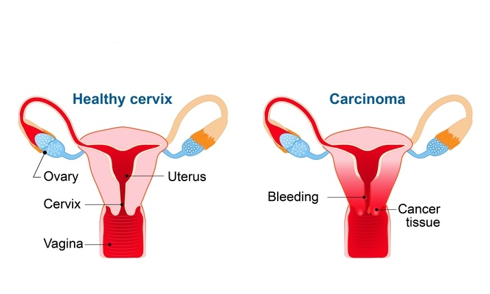 hpv virus cervix treatment
