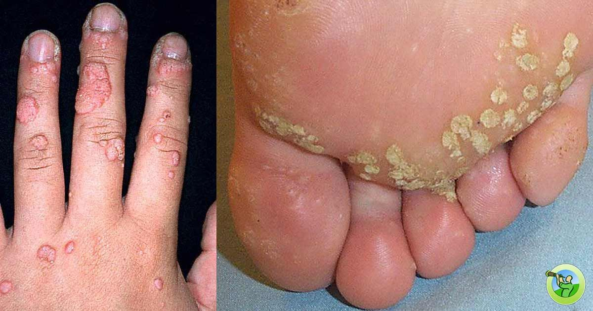 hpv virus with warts)