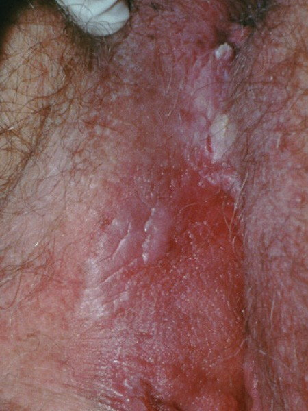 hpv warts diagnosis