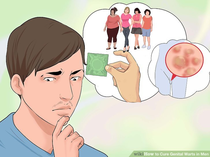 hpv warts male treatment)