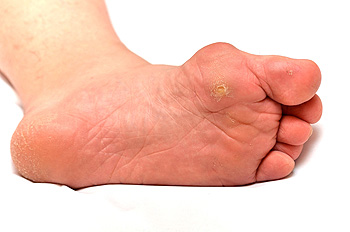 hpv warts on bottom of feet cancer de tiroides mas frecuente