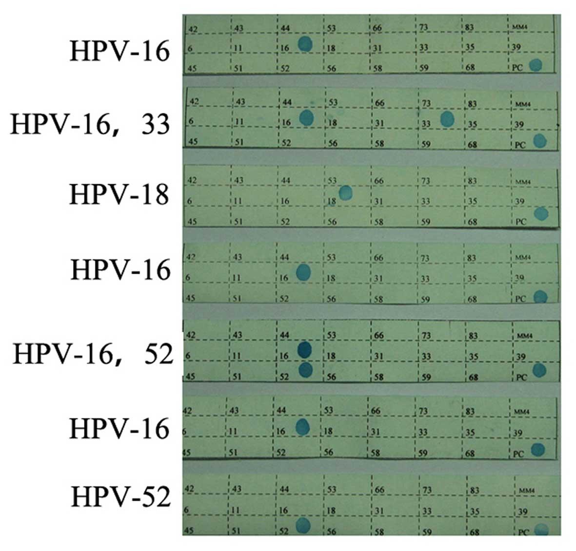 human papillomavirus 16-positive)