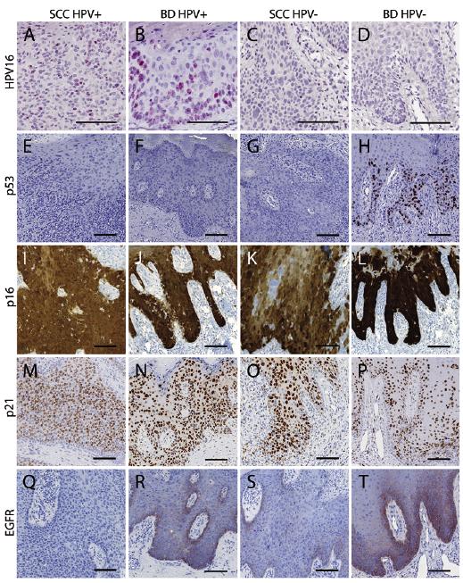 human papillomavirus p16 staining