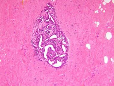 intraductal papilloma ddx hpv manner krebs