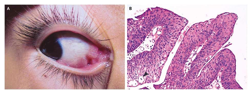 intraductal papilloma itchy