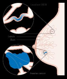 intraductal papilloma prognosis