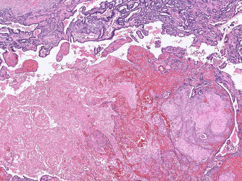 intraductal papilloma squamous metaplasia