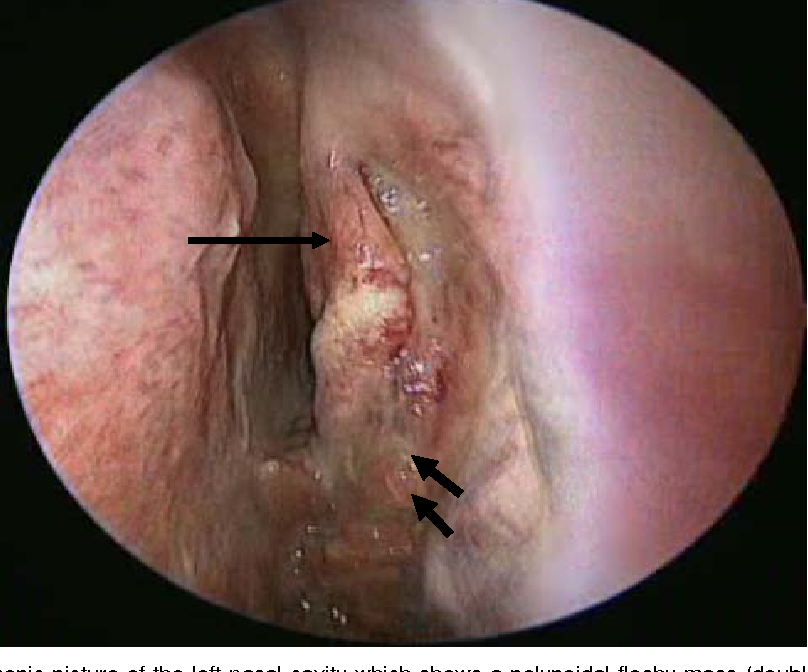 inverted papilloma endoscopic removal)