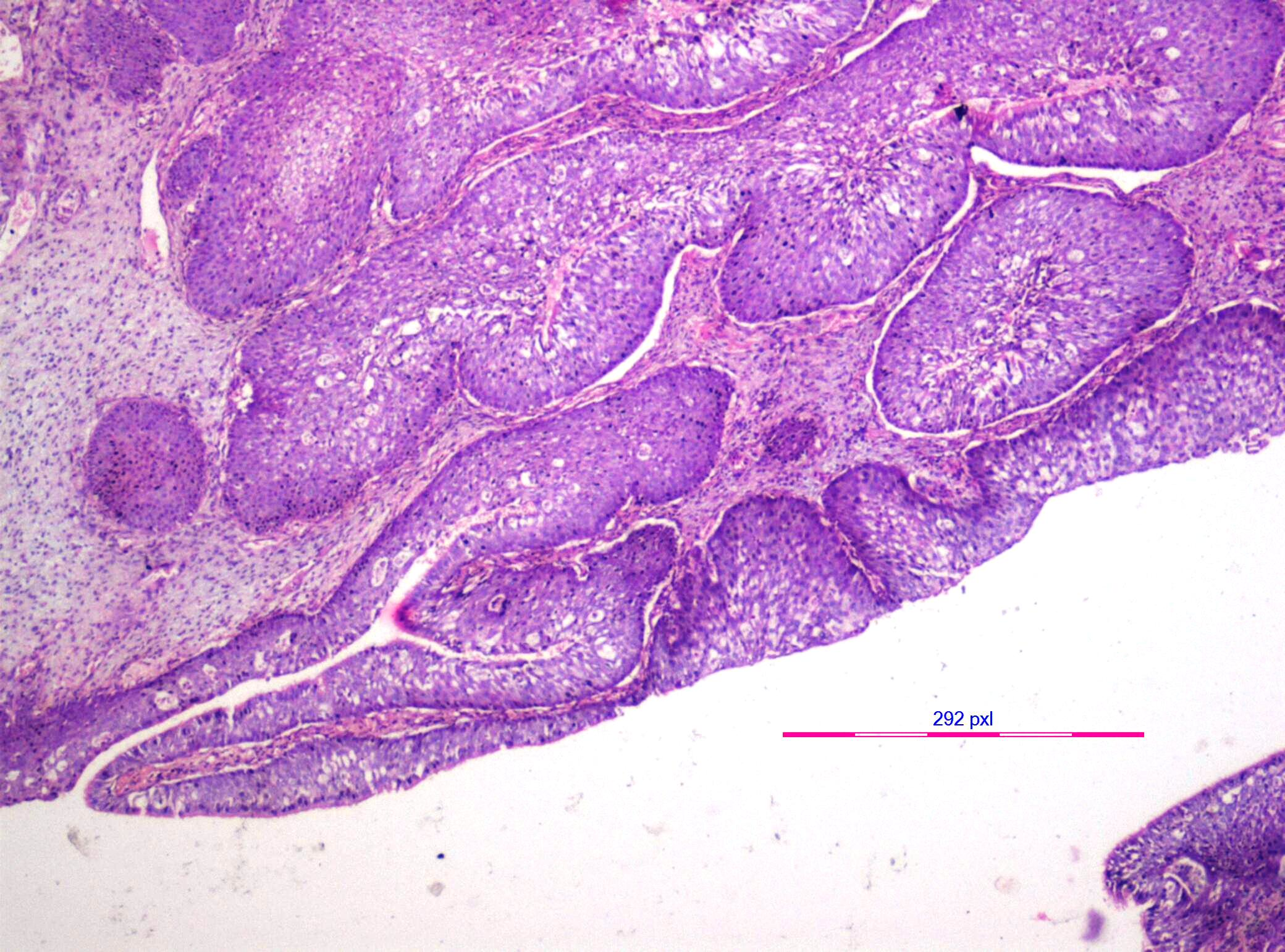inverted sinonasal papilloma pathology)