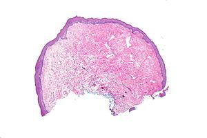 irritated fibroepithelial papilloma