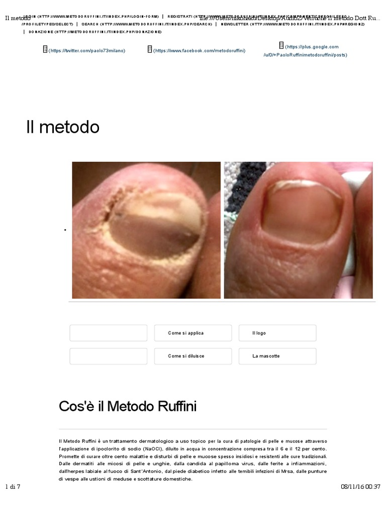 metodo ruffini per papilloma virus cancer ovarian stage 1