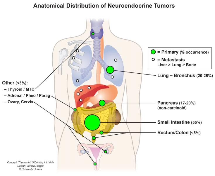neuroendocrine cancer carcinoid syndrome)