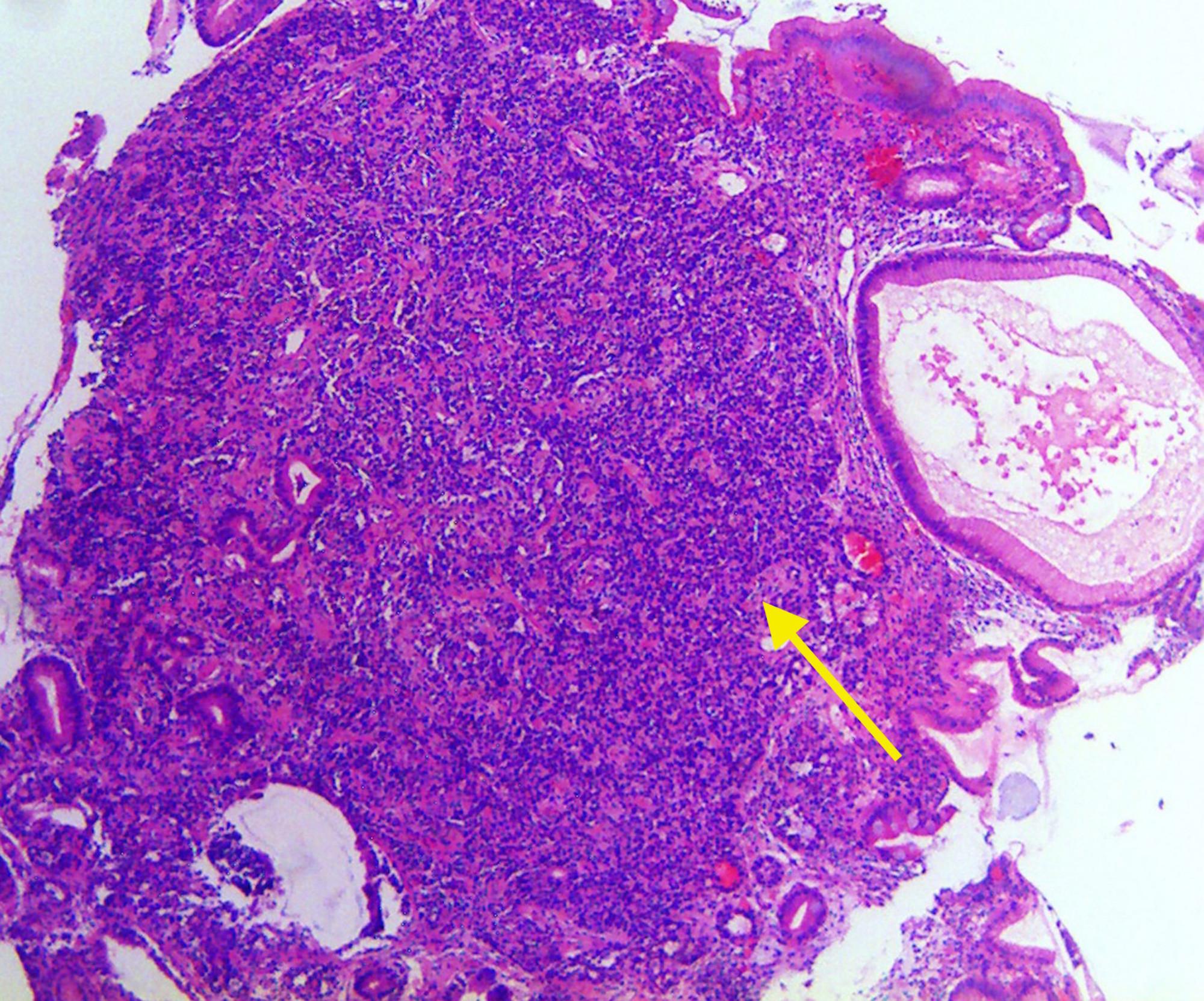 neuroendocrine cancer gastric)