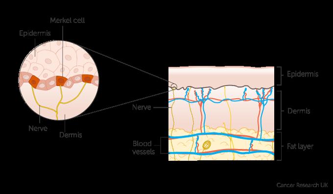 neuroendocrine cancer merkel cell