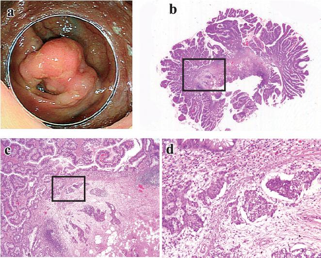 neuroendocrine cancer of the colon)