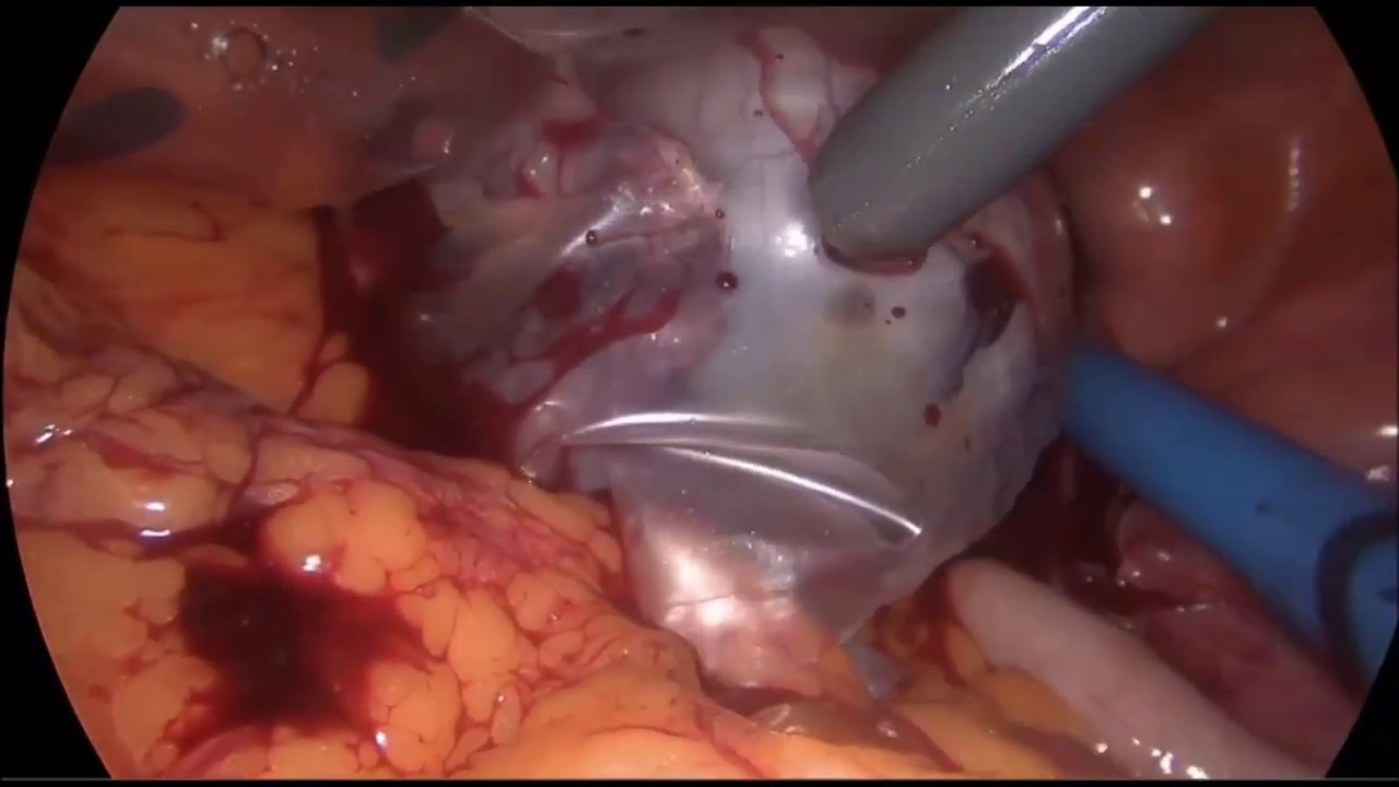 ovarian cancer laparoscopy