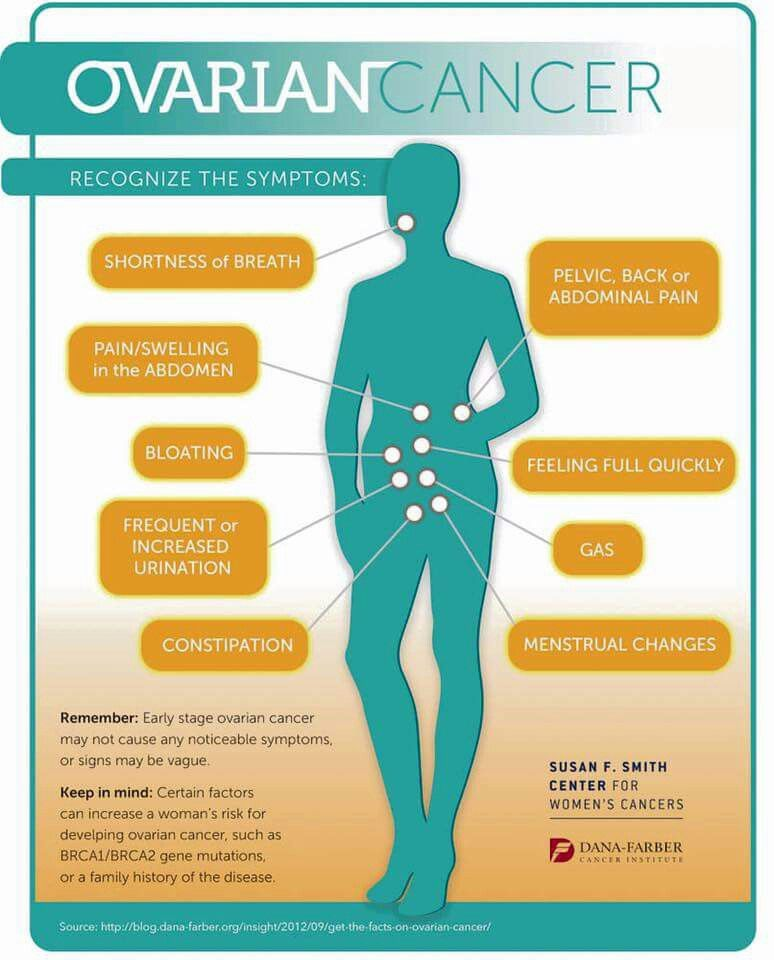 ovarian cancer leg swelling)