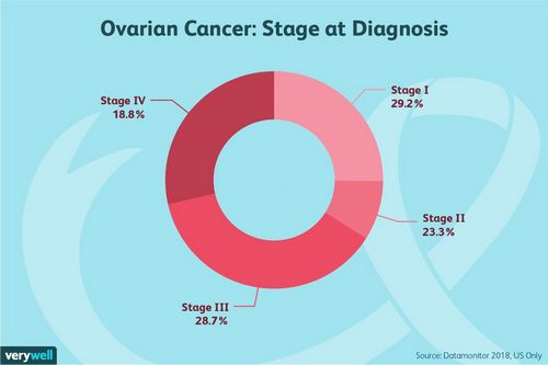 ovarian cancer or pregnancy)