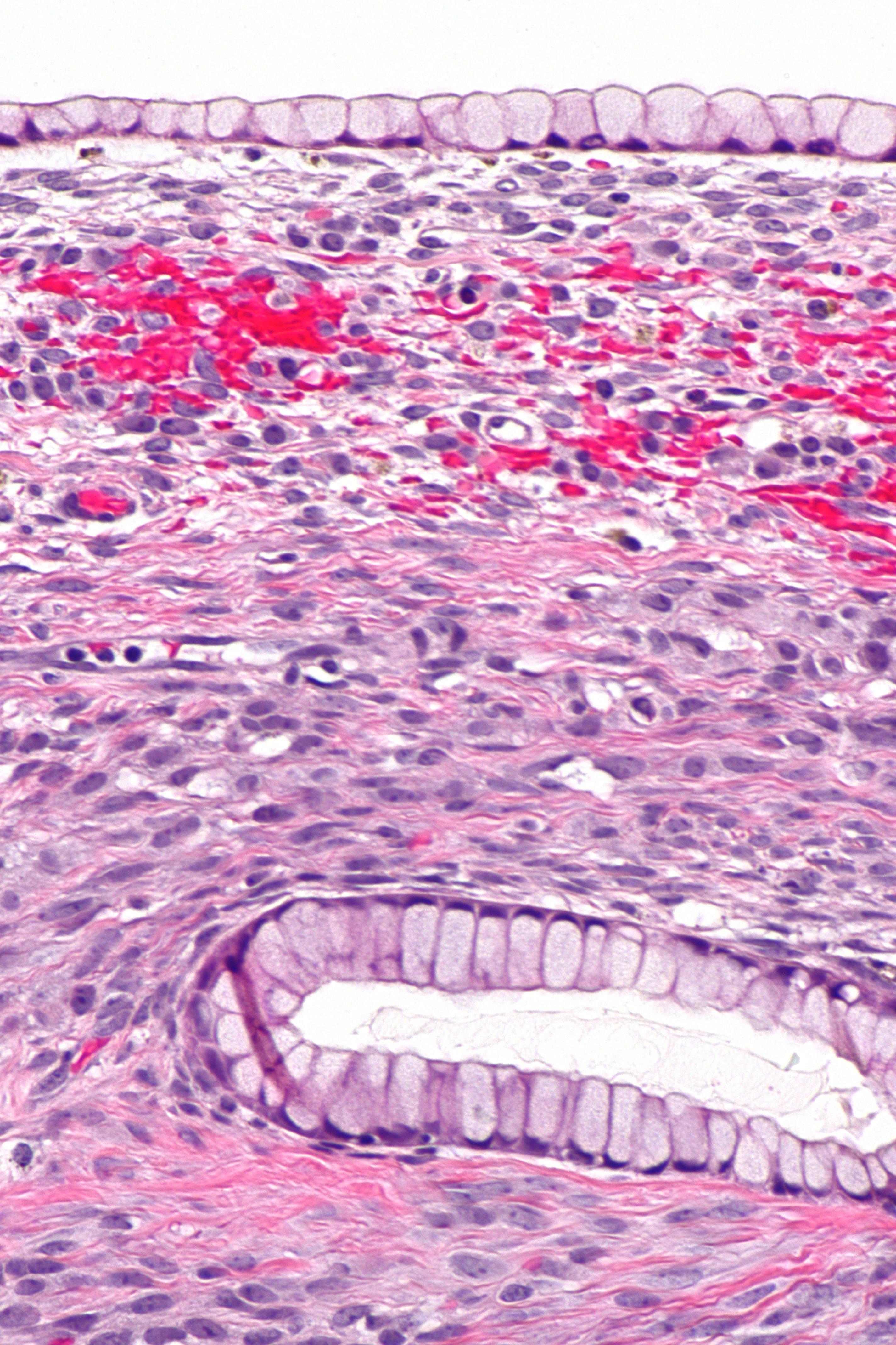 ovarian cancer znaczenie
