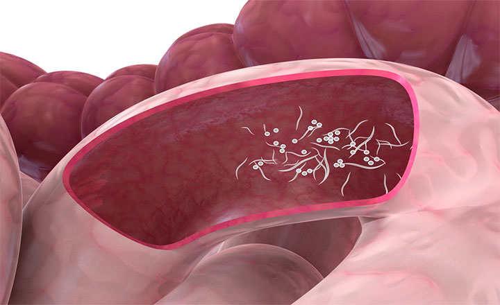 oxiuros intestino sintomi hpv in bocca