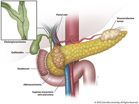 Cancer de pancreas - asspub.ro