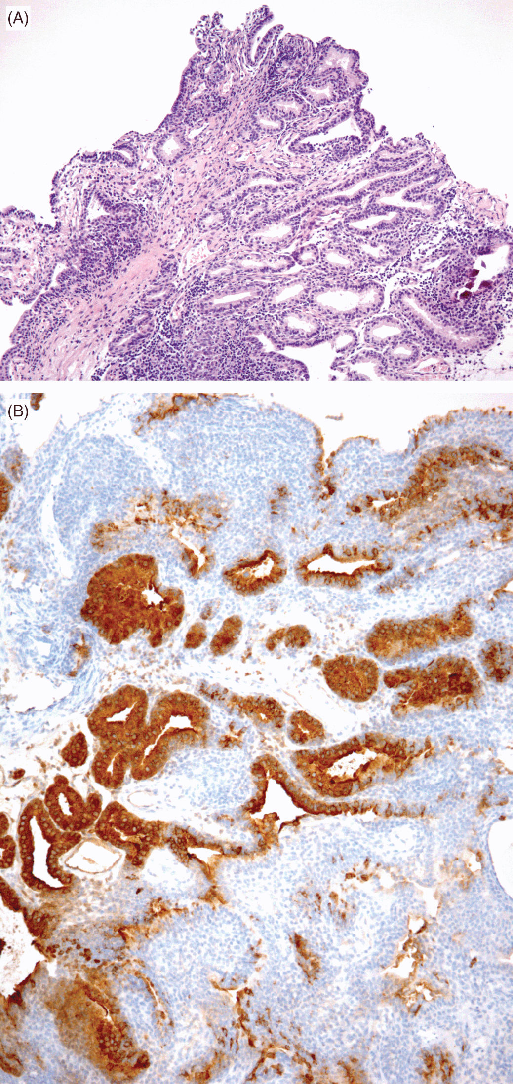 papillary lesion prostate