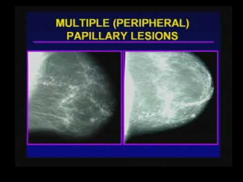 papillary lesion surgery