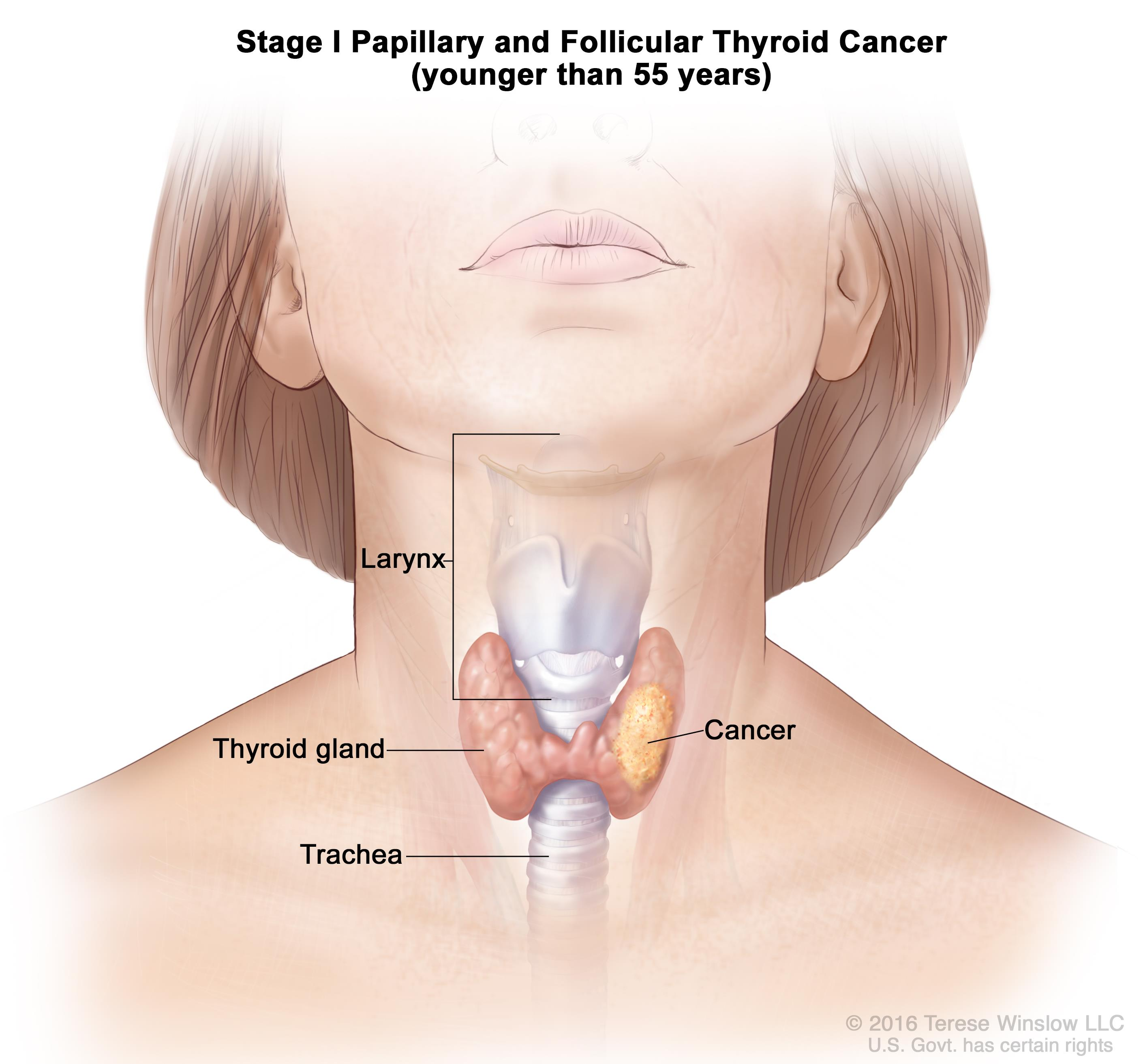 papillary thyroid cancer causes