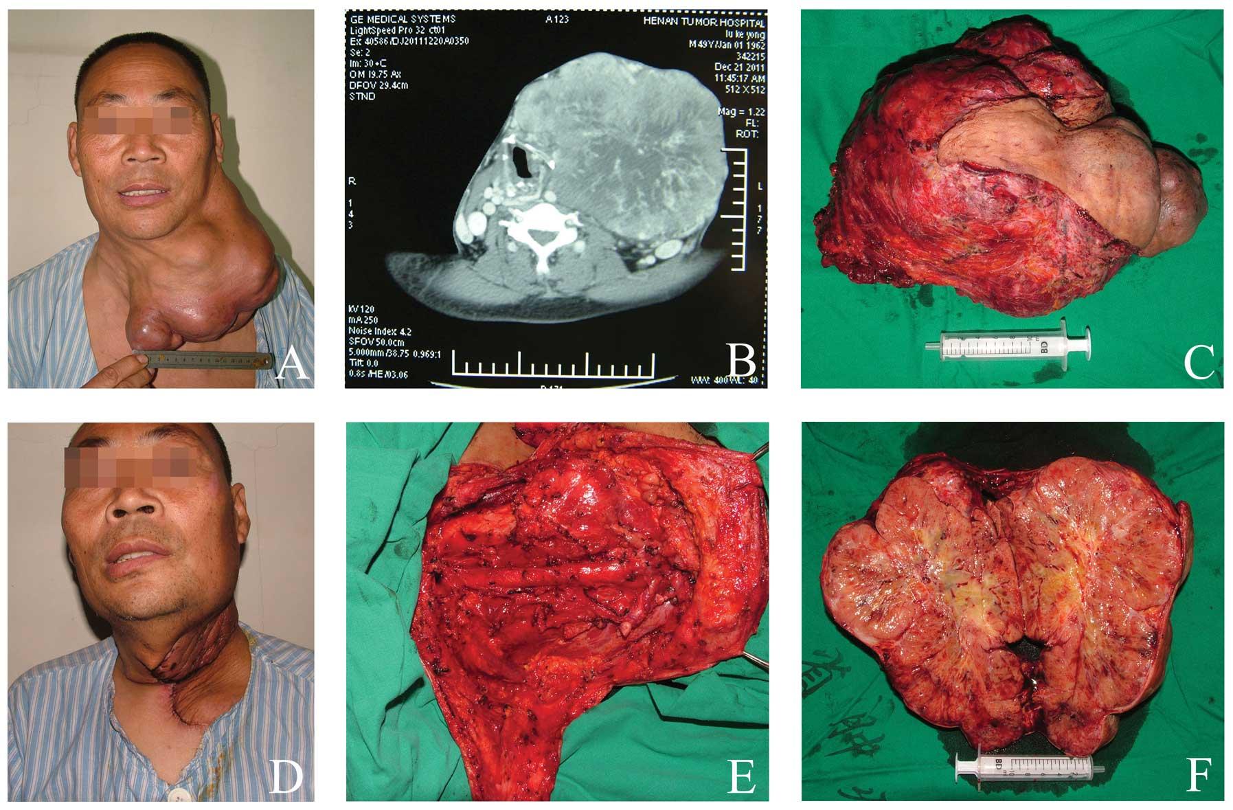 simptome de viermisori la copii papillomatosis diffuse