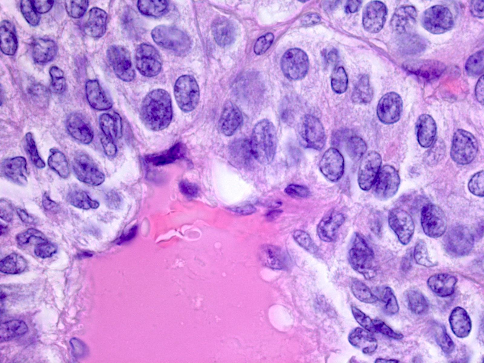 papillary thyroid cancer emedicine)