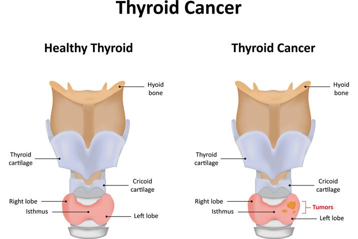 papillary thyroid cancer facts)