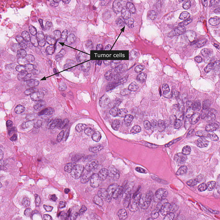 que es de papiloma papillomavirus incubation