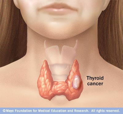 papillary thyroid cancer goiter