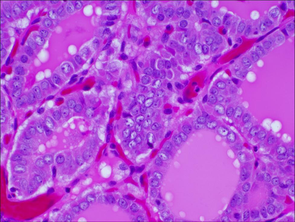 papillary thyroid carcinoma pathology outline)
