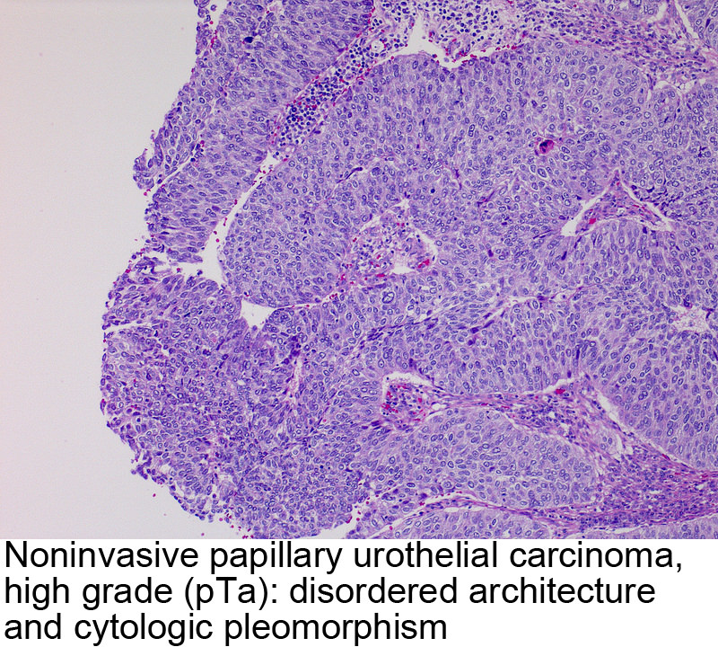 papillary urothelial carcinoma description