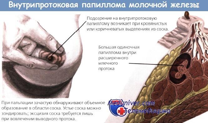 papilloma a torokban hpv on tongue how to treat